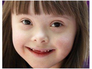 Down szindrómával élő gyermek